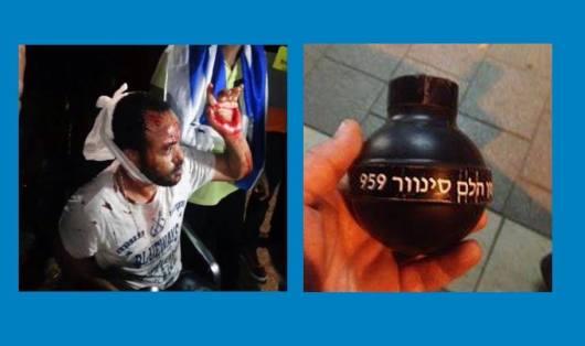 ככה נראו הנפגעים של ההפגנה...וכך נראים אמצעי פיזור ההפגנות של משטרת ישראל